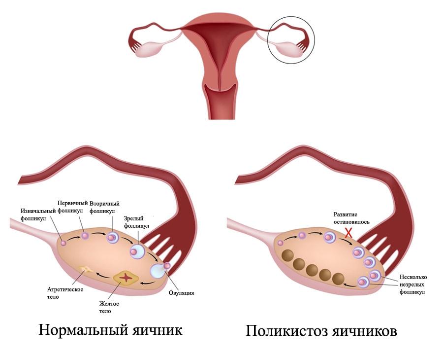 Синдром поликистозных яичников (СПЯК)