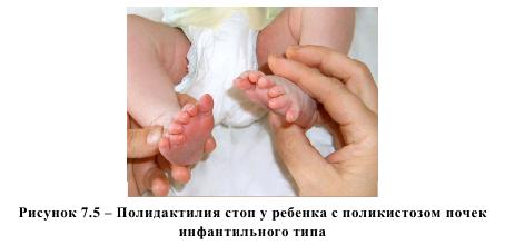 Рисунок 7.5 - Полидактилия стоп у ребенка с поликистозом почек инфантильного типа