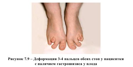 Рисунок 7.9 - Деформация 3-4 пальцев обеих стоп у пациентки с наличием гастрошизиса у плода