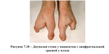 Рисунок 7.10 - Двулапая стопа у пациентки с диафрагмальной грыжей у плода