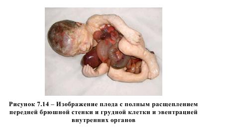 Рисунок 7.14 - Изображение плода с полным расщеплением передней брюшной стенки и грудной клетки и эвентирацией внутренних органов