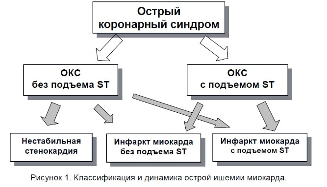 Рисунок 1. Классификация и динамика острой ишемии миокарда