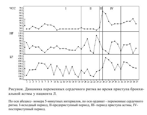 Рисунок. Динамика переменных сердечного ритма во время приступа бронхиальной астмы у пациента Л.