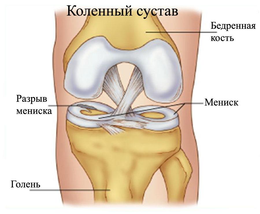 Мениск суставной фото