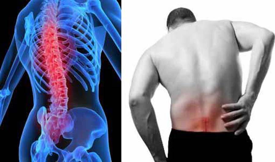 Болит спина – воспаление нервных корешков