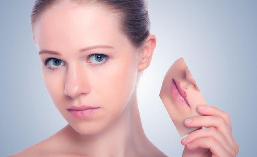 Лечение герпеса на губах: чем быстрей - тем лучше