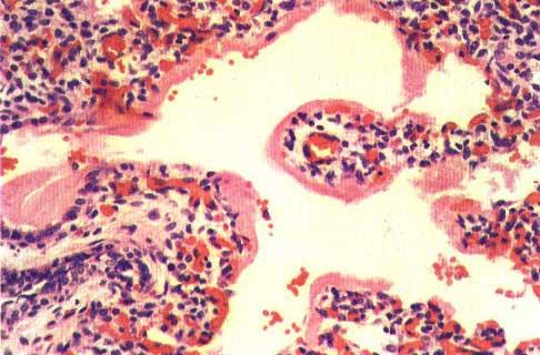 Альвеолит. Болезнь гиалиновых мембран. Гематоксилин-эозин, x280