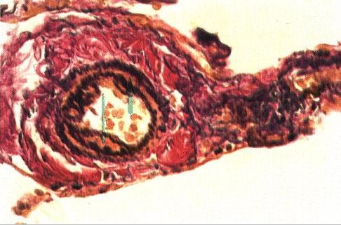 Пневмосклероз. Ван-Гизон, x280