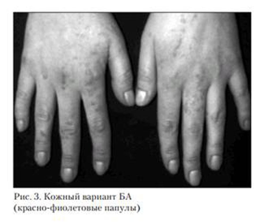 Бациллярный ангиоматоз кожный